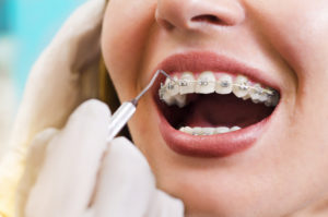 orthodontic treatment - lingual braces